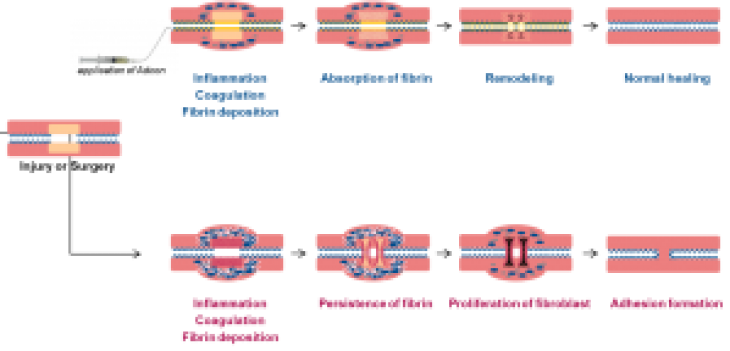 Adhesion formation