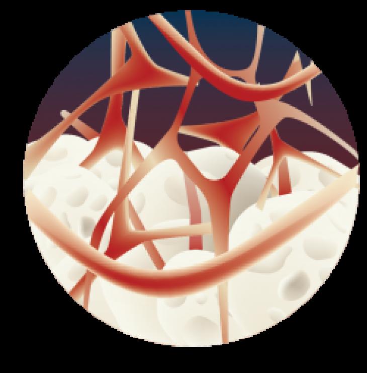 bone-regeneration-mbcp