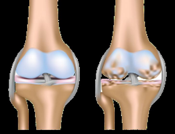 healthy vs osteoarthritic knee