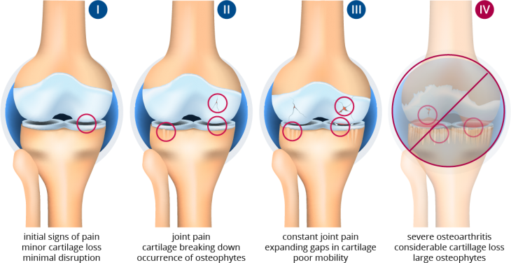 osteoarthritic knee stages