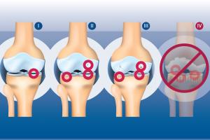 treating-osteoarthritis